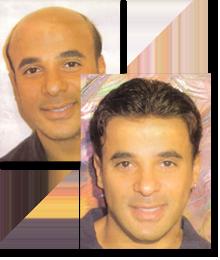 tratamento queda de cabelo masculino